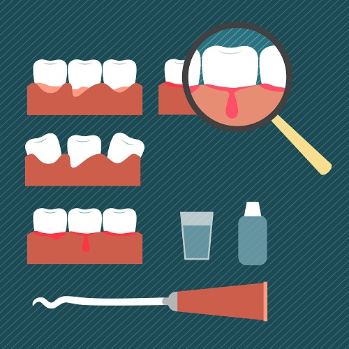 Bleeding Gums: See A Dentist in Joondalup